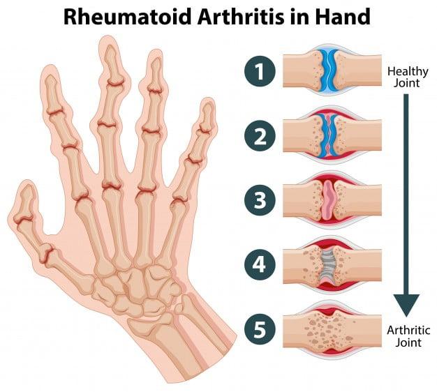 rheumatoid arthritis, joint pain, physiotherapy at home